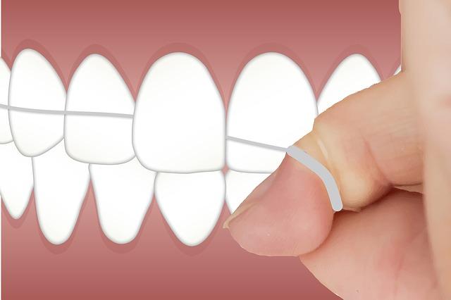 čištění zubů nití